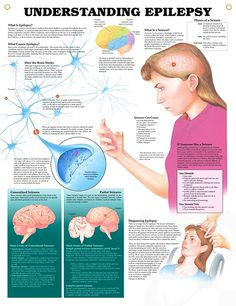 Understanding Epilepsy anatomy poster shows brain activity and defines the main forms of generalized and partial seizures.