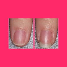 This Is An Amazing Way For Nail Growth