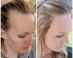 """Jodi said,""""Not going to lie. This has me bawling. I remember the first picture vividly. I remember looking at it and crying my eyes out that I had lost that much hair. It broke me. My self esteem was zero. I lost SO much hair. I needed Monat. I needed thi"""