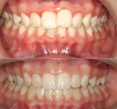 Actual patient of Impressions orthodontics, treated with Invisalign for 7 months