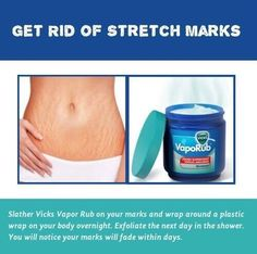 Life cheat for getting rid of stretch marks:https://www.youtube.com/watch?v=Ud78XMy_3aE