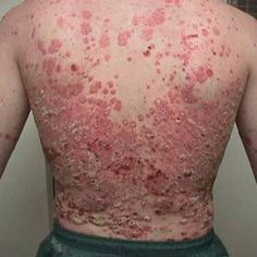 20 Home Remedies For Psoriasis Symptoms
