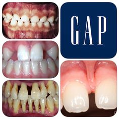 Diastema Also know as spacing or gaps between teeth. Can be a result of many things: 1. Normal in primary (milk) teeth. 2. It can be as a result of congenitally missing teeth. 3. Periodontitis (gum disease) is another cause. 4. Finally it can be due to a fleshy frenum that attaches between the teeth (usually between the central incisors). #dentist #dental #dentistry #dentalinfo #diastema #primaryteeth #hypodontia #periodontitis #frenum #teeth #gap #spacing #spaces by photodontic Our General…