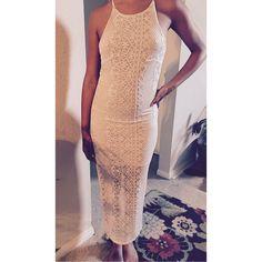 Lace Dress!!