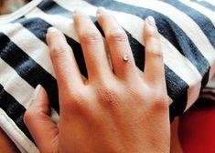 was considering a ring finger dermal...