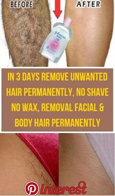 Today I will share an amazing unwanted hair removal treatment with which you can. Today I will share an amazing unwanted hair removal treatment with which you can remove facial and Underarm Hair Removal, Back Hair Removal, Electrolysis Hair Removal, Natural Hair Removal, Hair Removal Cream, Hair Removal Scrub, Hair Removal Diy, Best Hair Removal Products, Hair Removal Methods