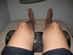 Tips On How To Relieve Knee Pain in Female Through Acupuncture