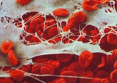 Skin tissue - first line of defense against micro organism