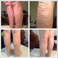 LUMINESCE Serum & Body Cream - varicose veins be gone