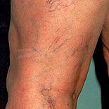 VARIVE - Pozbądź się żylaków bez zbędnych operacji i procedur medycznych