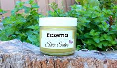 Scaly Skin Relief Salve by FabulousFarmGirl. A soothing remedy for dry, cracked, itchy, irritated skin. Where has this been all my life? Home Remedies For Eczema, Natural Remedies, Essential Oils For Eczema, Scaly Skin, Diy Shampoo, Oils For Skin, Organic Skin Care, The Balm, Eczema Psoriasis