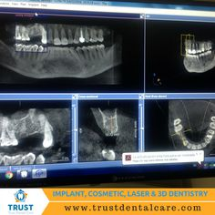 Have you ever seem a panoramic X-ray of a jaw? This is how one looks like. The complete set of pictures are done with the CT scan; a specialized dental instrument for this type of X-rays.   #CTscan #panoramicXray #Xray #jaw #dentaltreatment #implantsurgery #Mexicodentist #dentistatTijuana #oralsurgery