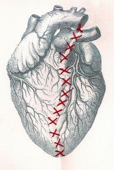 Broken Heart with Repair Work, art illustration, stitched art.