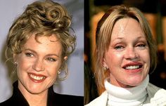 Chatter Busy: Melanie Griffith Surgery