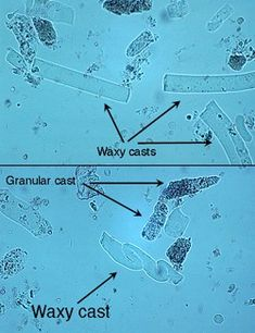 Waxy and granular casts in urine.