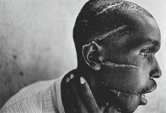 Rwandan Genocide. (ルワンダ虐殺) ルワンダで発生したジェノサイド「ルワンダ虐殺」の中、フツ族の民兵組織インテラハムウェに、ツチ族との内通を疑われ、顔を傷つけられたフツ族の男性。 James Nachtwey(アメリカ) World press photo of the year 1994