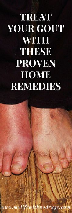 21 #HomeRemedies For #Gout you should know