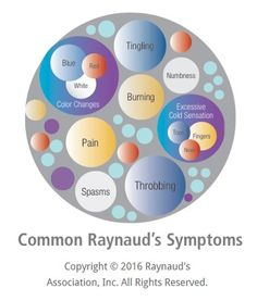 This is a secondary complication to my son's Myotonic Dystrophy: The Raynaud's Association — provide support and education to the millions of sufferers of Raynaud's Phenomenon Raynaud's Disease, Thyroid Disease, Autoimmune Disease, Special Messages For Friends, Myotonic Dystrophy, Raynaud's Phenomenon, Psoriatic Arthritis, Chronic Illness, Chronic Pain