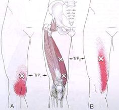Does your knee buckle ? It can come from this muscle