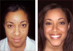 Look what Emu Oil did for this beautiful lady's skin!