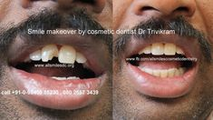 Smile makeover by cosmetic dentist Dr Trivikram.A case of fractured tooth restored with a composite laminate. Read more http://www.allsmilesdc.org/cosmetic-dentistry/ . #CosmeticDentistry #Dentist #Bangalore