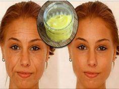 İstenmeyen Yüz Tüylerinden Kurtulmanın Tamamen Doğal Sırları Age Spots On Face, Pele Natural, Baking Soda Face, Eye Wrinkle, Les Rides, Anti Aging Treatments, Aging Process, Best Anti Aging, Tips Belleza