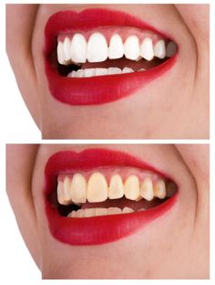 Teeth Whitening at Home: Lip Colors That Brighten Your Teeth home remedies, teeth whiten, food, tray, white teeth, brushes, lip colors, dental care, homes