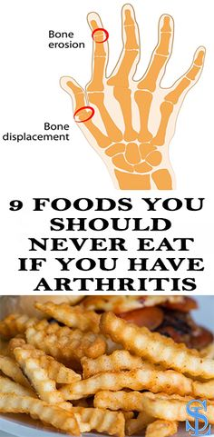 9 FOODS YOU SHOULD NEVER EAT IF YOU HAVE ARTHRITIS