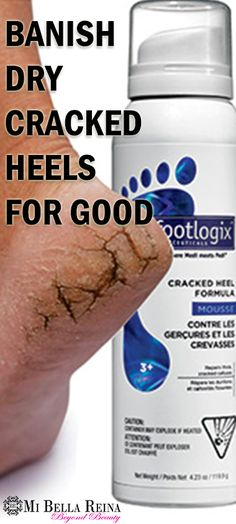 Footlogix® 3+ Extra Dry Cracked Heel Formula Mousse is made with Dermal Infusion Technology for severely dry, cracked heels and calluses. It moisturizes and protects extremely callused, cracked skin, and is permeable allowing skin to return to its natural functions. Get rid of dry, cracked heels for good! #Footcare