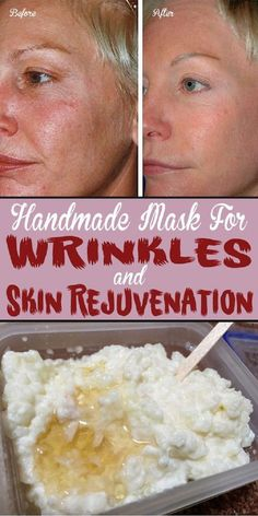 Handmade Mask For Wrinkles and Skin Rejuvenation: Rice is a powerful source of linoleic acid and squalene, one good antioxidant that stimulates collagen production. All the substances the rice contains are proven to make the aging process slower and may protect dermis from the harmful effects of the sun To Get Rid of Wrinkles – 13 Homemade Anti Aging Remedies To Reduce Wrinkles and Look Younger