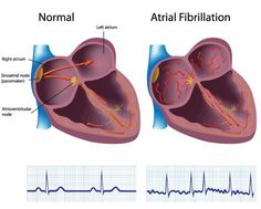 A-Fib    Atrial fibrillation is a chaotic rhythm caused by a overly rapid production of atrial impulses. This arrhythmia has the following characteristics: -Rate: Atrial rate can be greater than or equal to 350 bpm; Ventricular rate will vary -Rhythm: Irregular -P Waves: No true P waves; atrial activity is chaotic -PR Interval: None QRS: 0.06 - 0.10 -Signs and symptoms will depend  to see them.