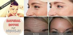 Naturalny Botox na zmarszczki!!! Masz w domu trzy proste i naturalne składniki, które pomogą...