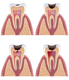 Decay Tooth Dental Caries Always interesting what you can find when you type in cosmetic surgery and other related terms