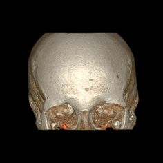 New CT Reveals Inner Structures of Body in Exquisite Detail   IFLScience