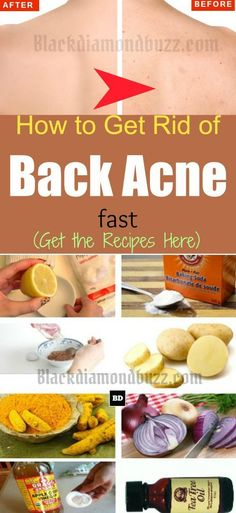 How to Get Rid of Back Acne Fast – 7 Best Home Remedies for Backne How To Get Rid Of Back Acne Overnight Acne Treatment At Home, Cystic Acne Treatment, Skin Treatments, Back Acne Remedies, Natural Acne Remedies, How To Get Rid Of Acne, How To Treat Acne, Acne Scars, Natural Skin Care