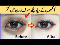 How To Remove Dark Circles Overnight & Powerful Remedy for Remove Dark Circles In 3 Days - YouTube