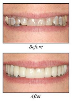 cosmetic dentistry before and after