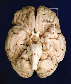"""Ventral surface of H.M.'s brain. """"The fixed specimen was photographed after removal of the leptomeninges. Evidence of the surgical lesions in the temporal lobes is highlighted by white geometric contours (a, b). A mark produced by the oxidation of one of the surgical clips inserted by Scoville is visible on the parahippocampal gyrus of the right hemisphere (black arrow). (c) encloses a lesion in the orbitofrontal gyrus that affects the cortex and WM..."""""""
