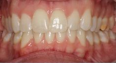 Check out the before and after work by Dr. Alhadef.