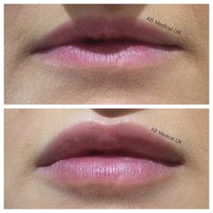 1. Lip augmentation. I have very thin lips, like the top ...