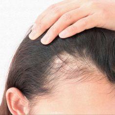 Best Hair Growth Vitamins, Dramatic Hair, Best Hair Transplant, Hair Falling Out, Hair Loss Women, Hair Starting, Hair Loss Remedies, Prevent Hair Loss, Hair Treatments