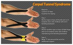 TIPS for taping wrists riddled with Carpal Tunnel Syndrome. Health And Beauty, Health And Wellness, Health Fitness, Carple Tunnel Relief, Carpal Tunnel Exercises, Kinesiology Taping, Carpal Tunnel Syndrome, Alternative Health, Massage Therapy