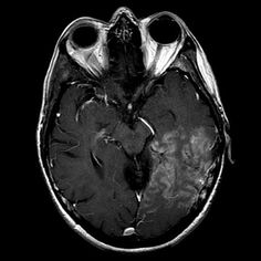 SMART syndrome:  Left temporal-occipital region gyral enhancement. In this clinical setting, the appearance suggests SMART syndrome (stroke-like migraine attacks after radiation therapy), an uncommon complication of cerebral irradiation.