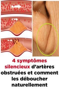4 symptômes silencieux d'artères obstruées et comment les déboucher naturellement Hygiene, Exercise, App, Health, Bald Spot, Natural Health, Ejercicio, Excercise, Salud