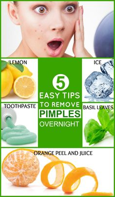 5 Easy Tips To Remove Pimples Overnight