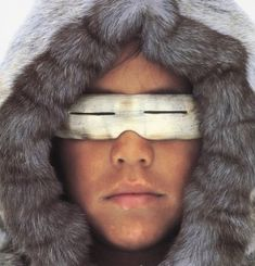 First aid for frostbite, snow blindess and other cold weather survival tips. Prepper Ideas » Blog Archive » COLD Weather AND First-Aid