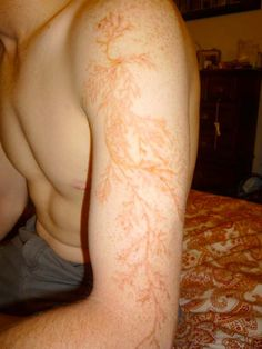 Not a tattoo by man but by nature. The amazing mark left behind on a lightning strike survivor #lightning #scar #science