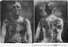 John Meintz, punished during World War I (Circa 1917 - 1918). Meintz was tarred and feathered for not supporting war bond drives. Front and rear views, showing feathers stuck on his body.