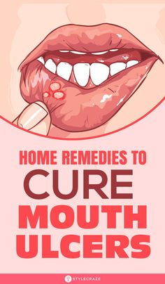 Top 15 Home Remedies To Cure Mouth Ulcers: Irrespective of what the cause is an ulcer in the mouth can be very annoying. If you are looking for easy and simple home remedies to get rid of mouth ulcers keep reading! Sore In Mouth Remedies, Ulcer Remedies Mouth, Blisters In Mouth Remedies, Remedy For Mouth Ulcers, Mouth Ulcer Symptoms, Cure For Mouth Ulcers, Cold Home Remedies, Natural Health Remedies, Home Remedies