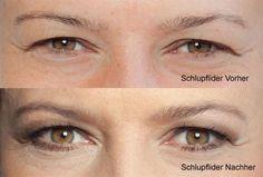 Schlupflider Vorher-Nachher Vergleich Mascara can be a cosmetic commonly utilized boost the eyelashe Gold Eye Makeup, Smokey Eye Makeup, Makeup For Brown Eyes, Drooping Eyelids, Eyeliner Designs, How To Make Brown, Natural Wedding Makeup, Brown Eyeshadow, Matte Eyeshadow